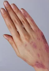 who does eczema affect